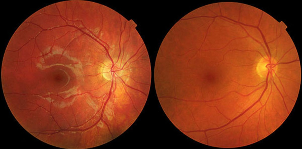 Treatment for Age-related Macular Degeneration
