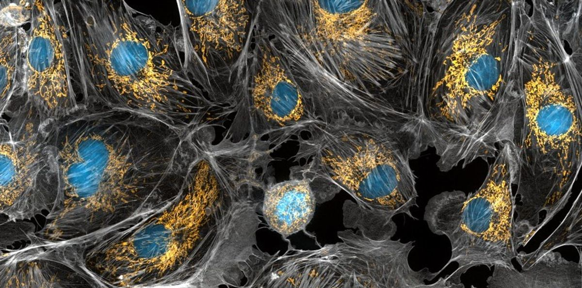 Engineered endosymbiosis: what would be some amazing collaborations?