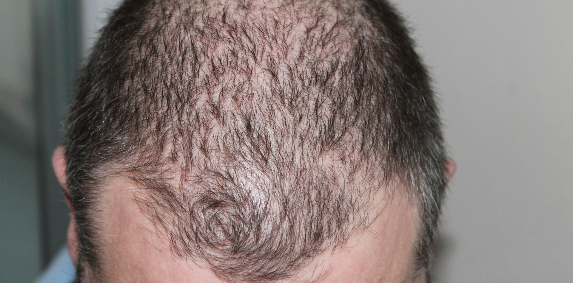 Apply Bacteria to the Scalp for Hair Regeneration
